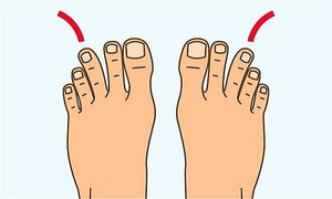 Tiết lộ không ngờ về sức khỏe qua màu sắc và mùi của chân