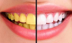Làm thế nào để có hàm răng trắng sáng?
